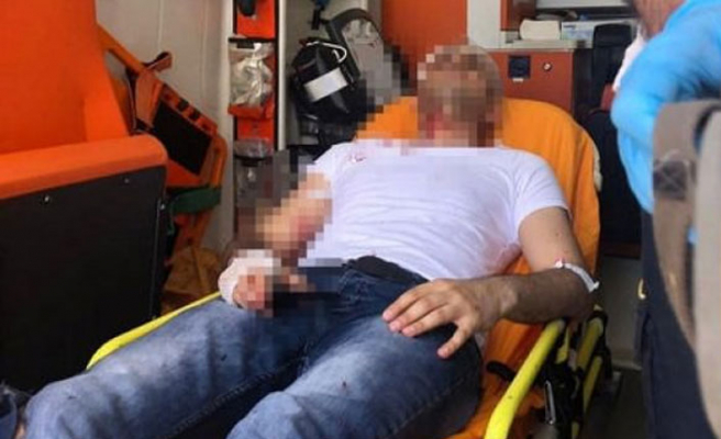 Akit Haber Müdürü Murat Alan saldırıya uğradı