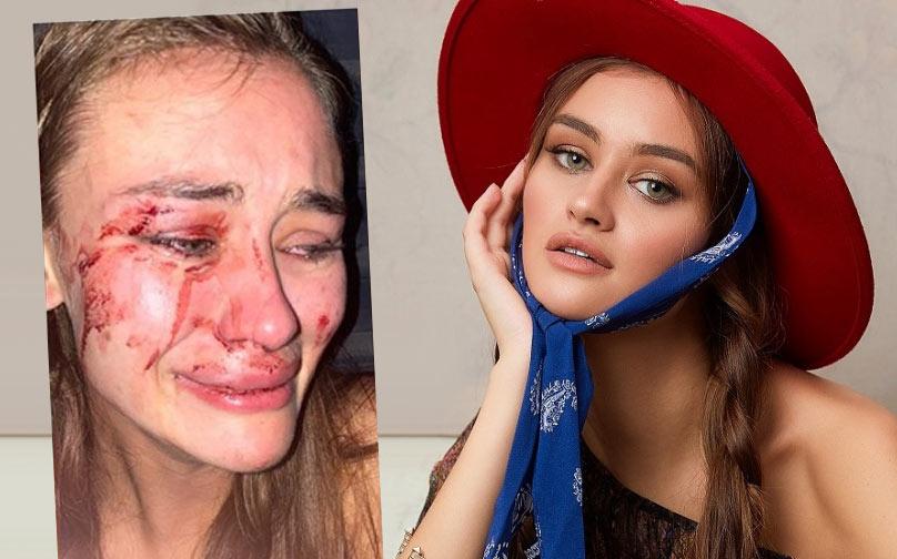 İzmir Çeşme darp edilen Ukraynalı model Daria Kyryliuk